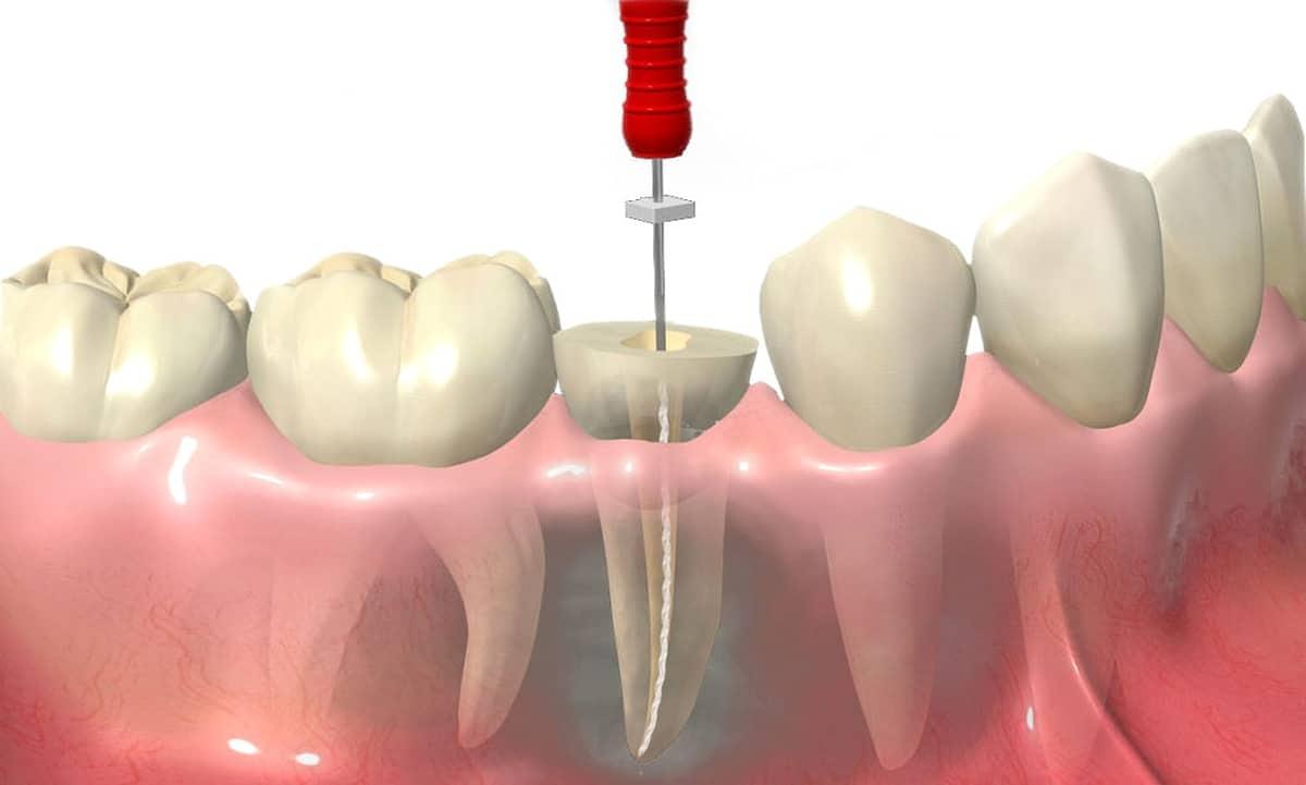 devitalizzazione endodonzia